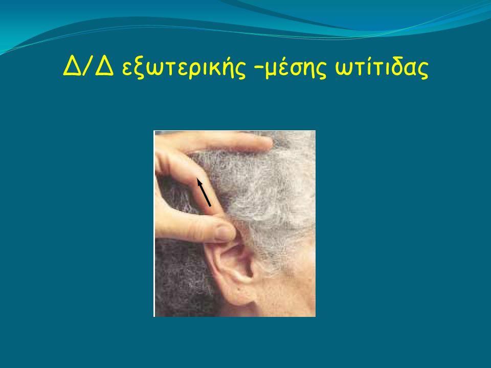 Δ/Δ εξωτερικής –μέσης ωτίτιδας