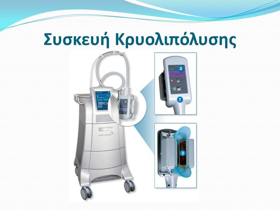 Συσκευή Κρυολιπόλυσης