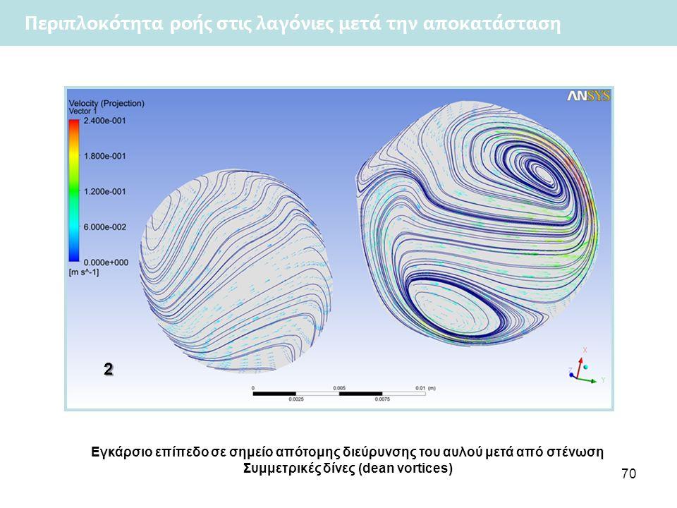 70 Περιπλοκότητα ροής στις λαγόνιες μετά την αποκατάσταση2 Εγκάρσιο επίπεδο σε σημείο απότομης διεύρυνσης του αυλού μετά από στένωση Συμμετρικές δίνες (dean vortices)