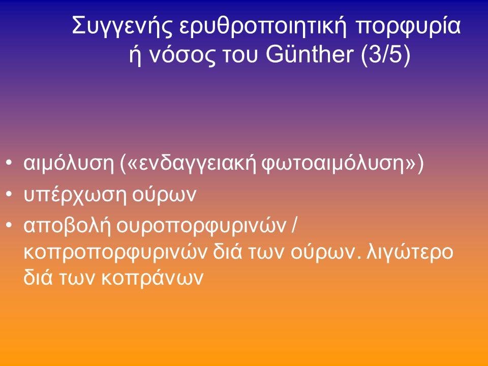 Συγγενής ερυθροποιητική πορφυρία ή νόσος του Günther (2/5) χρώσις οδόντων- οστών