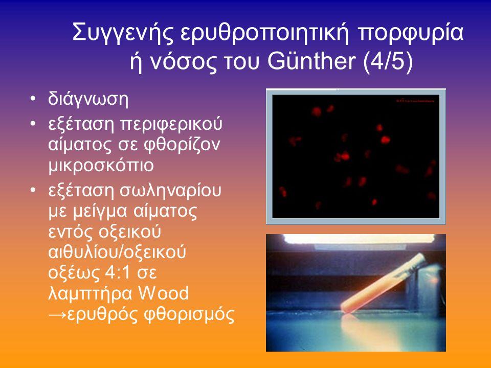 Συγγενής ερυθροποιητική πορφυρία ή νόσος του Günther (3/5) αιμόλυση («ενδαγγειακή φωτοαιμόλυση») υπέρχωση ούρων αποβολή ουροπορφυρινών / κοπροπορφυρινών διά των ούρων.