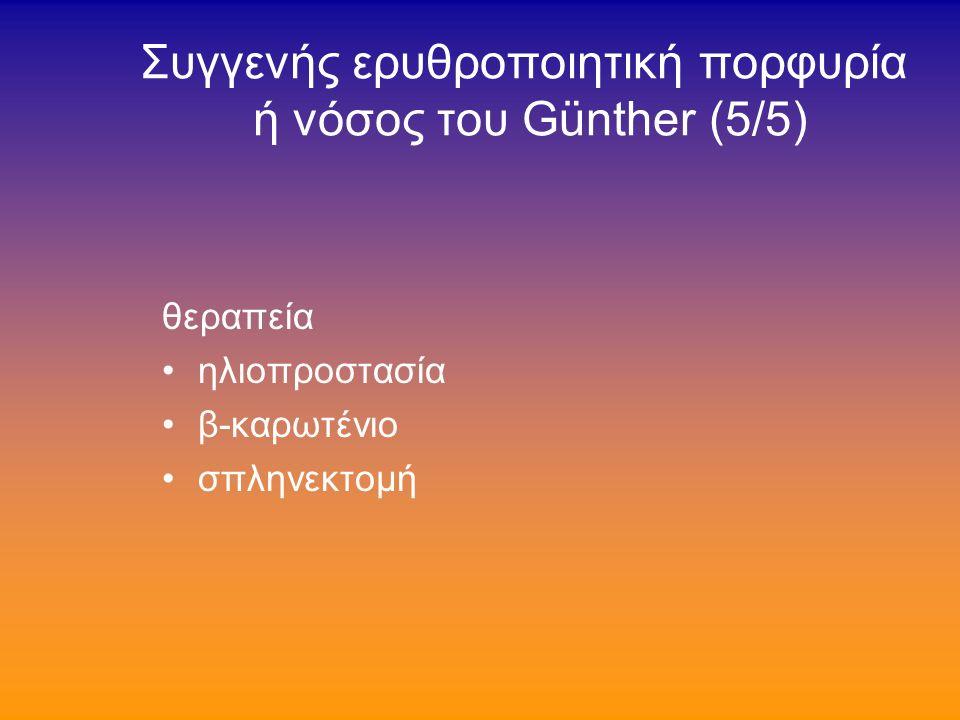 Συγγενής ερυθροποιητική πορφυρία ή νόσος του Günther (4/5) διάγνωση εξέταση περιφερικού αίματος σε φθορίζον μικροσκόπιο εξέταση σωληναρίου με μείγμα αίματος εντός οξεικού αιθυλίου/οξεικού οξέως 4:1 σε λαμπτήρα Wood →ερυθρός φθορισμός