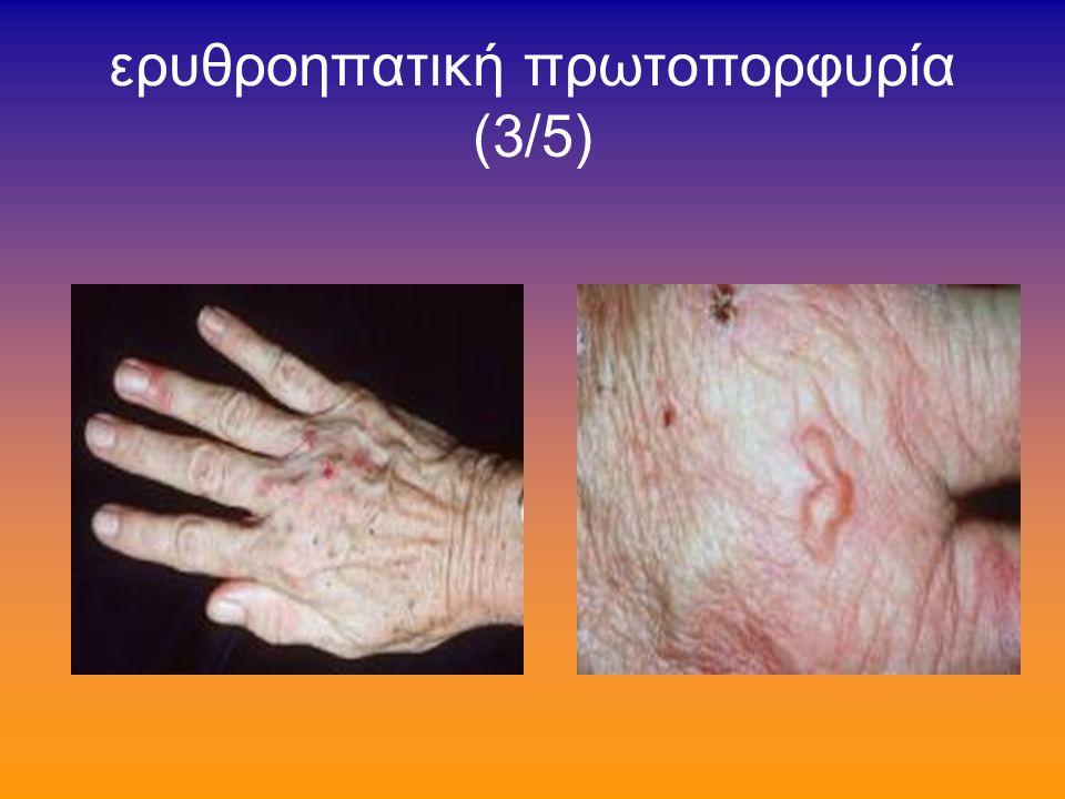 ερυθροηπατική πρωτοπορφυρία (2/5) την περιέγραψε δερματολόγος το 1961 κνησμός-οίδημα-πετέχειες-φυσσαλίδες-ουλές μετά από 1'-2' έκθεση στο φώς γενικώς καλή πορεία εκτός ολίγων με βαρεία ηπατική βλάβη, ίνωση-πυλαία υπέρταση- κίρρωση αιματολογικώς: κάποτε αιμολυτική αναιμία ενζυμική βλάβη: σιδηροχηλατάση ερυθροβλαστών-ινοβλαστών-ηπατικών κυττάρων κληρονομείται με τον επικρατούντα χαρακτήρα