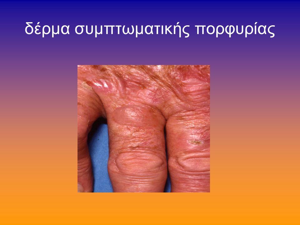 συμπτωματική πορφυρία (1/7) όψιμος δερματικη πορφυρία ή συμπτωματική δερματική πορφυρία ή porphyria cutanea tarda στην Ευρώπη-Αμερική η συχνότερη πορφυρία!