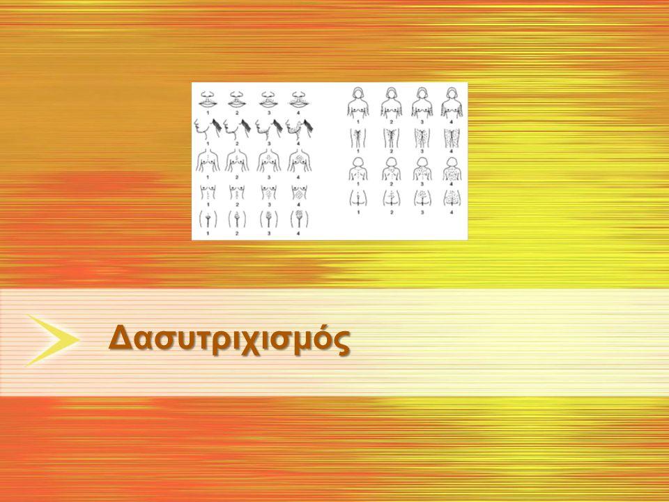 PCOS Ορισμοί 1990-2009 ΥπερανδρογονισμόςΩοθηκική δυσλειτουργία Αραιομηνόρροια (διάρκεια κύκλου > 45 ημέρες) Δευτεροπαθή αμηνόρροια (διάρκεια κύκλου > 3 μήνες) Πολυκυστική μορφολογία Αυξημένος όγκος ωοθήκης >10 mL Μετά αποκλεισμό άλλων διαταραχών: μη κλασική μορφή συγγενούς υπερπλασίας των επινεφριδίων, σύνδρομο Cushing, υπερπρολακτιναιμία, διαταραχές του θυρεοειδούς, ανδρογονοπαραγωγοί όγκοι ωοθηκών και επινεφριδίων, πρώιμη ωοθηκική ανεπάρκεια, φάρμακα NICHD, National Institute of Child Health and Human Disease of the NIH ESHRE, European Society for Human Reproduction and Embryology; ASRM, American Society for Reproductive Medicine AE-PCOS, Androgen Excess and PCOS Society (πρώην AES, Androgen Excess Society) PCOS Διαγνωστικά Κριτήρια Free testosterone Free Αndrogen Ιndex (T/SHBGx100)