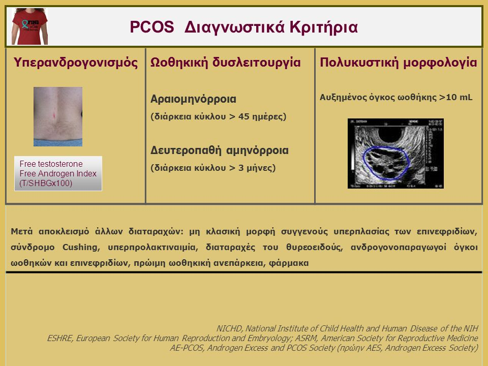 Συνδυασμένο αντισυλληπτικό δισκίο (ΣΑΔ) & PCOS Βελτίωση δασυτρυχισμού: μείωση παραγωγής & δράσης ανδρογόνων  Καταστολή LH - ωοθηκικής παραγωγής ανδρογόνων  Αύξηση ηπατικής παραγωγής SHBG - μείωση free testosterone  Αναστολή 5a-reductase δέρματος - μείωση dihydrotestosterone  Μείωση παραγωγής επινεφριδιακών ανδρογόνων Ρύθμιση κύκλου Αποφυγή υπερπλασίας ενδομητρίου Cassidenti, Obstet Gynecol 1991; O'Brien, J Ped Adol Gynecol 2008