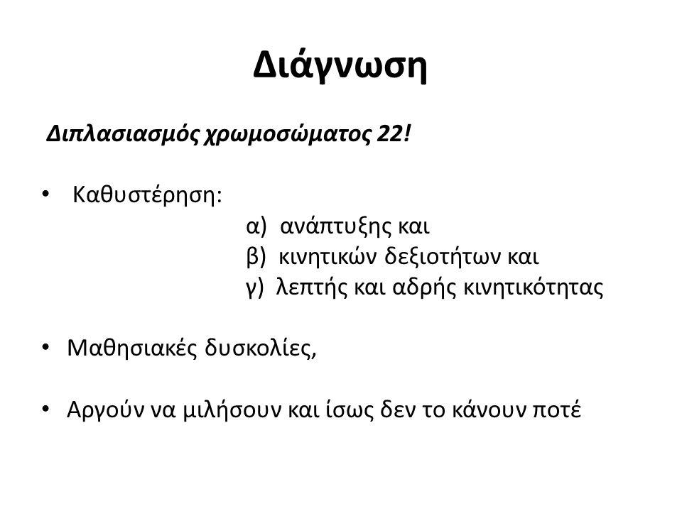 Διάγνωση Διπλασιασμός χρωμοσώματος 22.