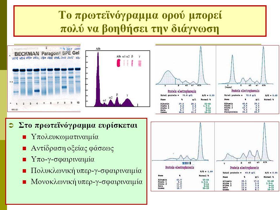 Το πρωτεϊνόγραμμα ορού μπορεί πολύ να βοηθήσει την διάγνωση  Στο πρωτεϊνόγραμμα ευρίσκεται Υπολευκωματιναιμία Αντίδραση οξείας φάσεως Υπο-γ-σφαιριναι