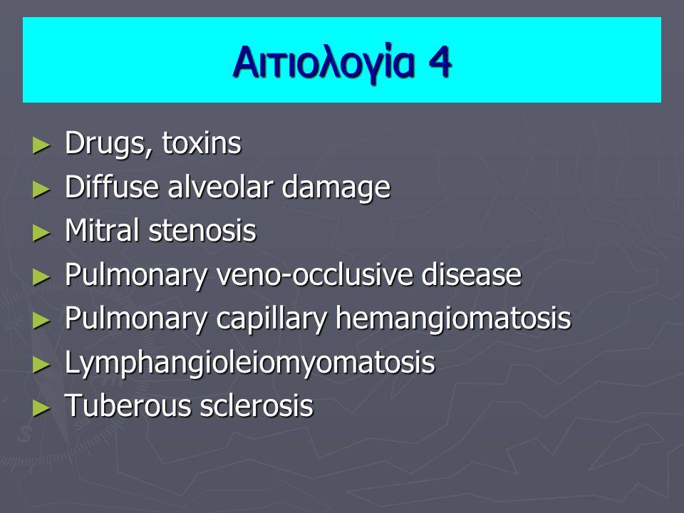 ► Drugs, toxins ► Diffuse alveolar damage ► Mitral stenosis ► Pulmonary veno-occlusive disease ► Pulmonary capillary hemangiomatosis ► Lymphangioleiomyomatosis ► Tuberous sclerosis Αιτιολογία 4