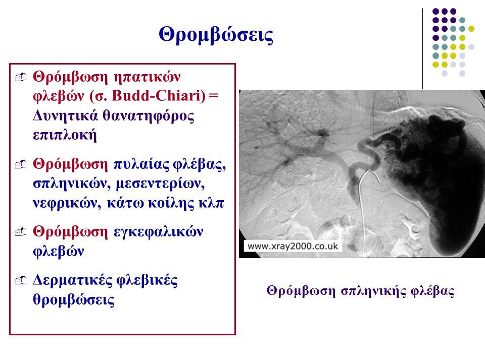 Θρομβώσεις  Θρόμβωση ηπατικών φλεβών (σ. Budd-Chiari) = Δυνητικά θανατηφόρος επιπλοκή  Θρόμβωση πυλαίας φλέβας, σπληνικών, μεσεντερίων, νεφρικών, κά