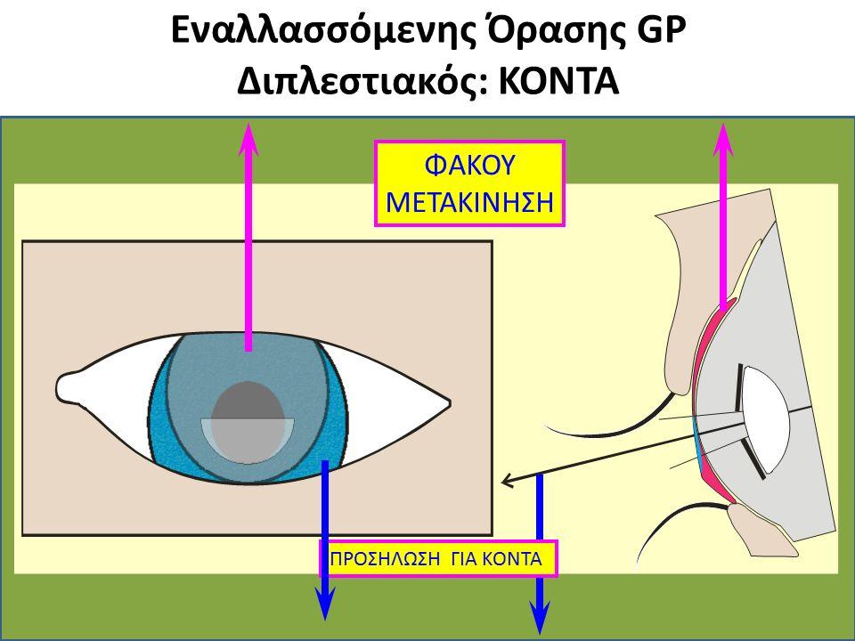 Εναλλασσόμενης Όρασης GP Διπλεστιακός: ΚΟΝΤΑ ΦΑΚΟΥ ΜΕΤΑΚΙΝΗΣΗ ΠΡΟΣΗΛΩΣΗ ΓΙΑ ΚΟΝΤΑ