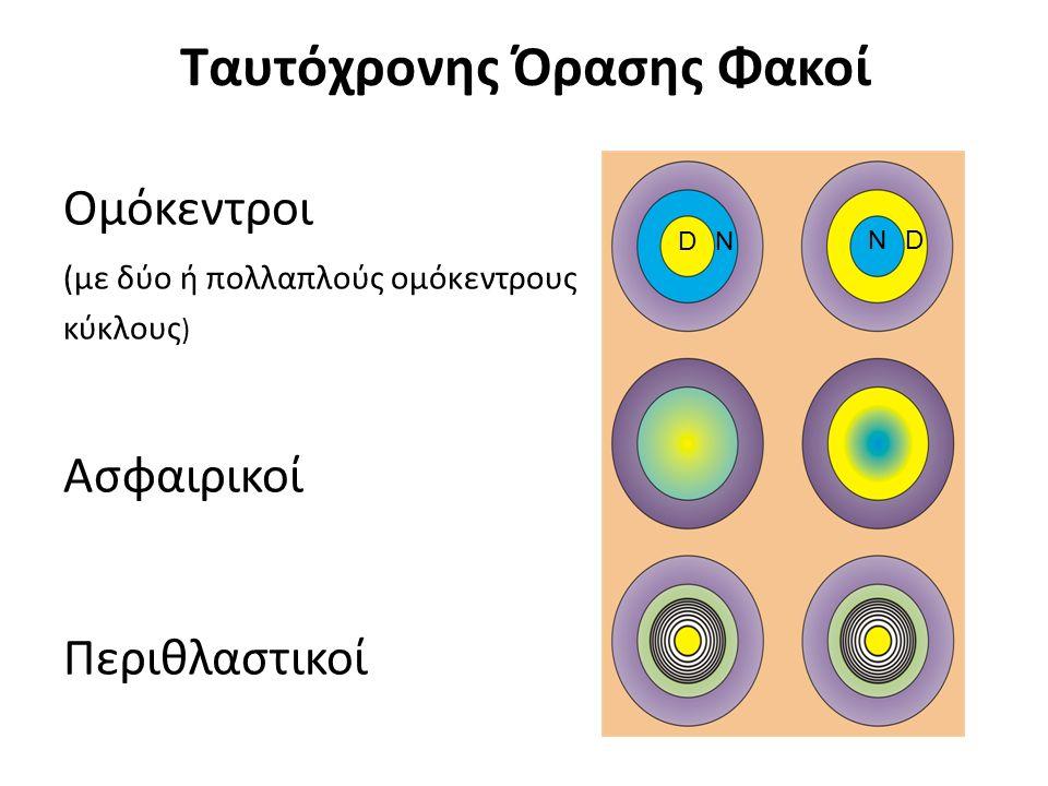 Ταυτόχρονης Όρασης Φακοί Ομόκεντροι (με δύο ή πολλαπλούς ομόκεντρους κύκλους ) Ασφαιρικοί Περιθλαστικοί D ND N
