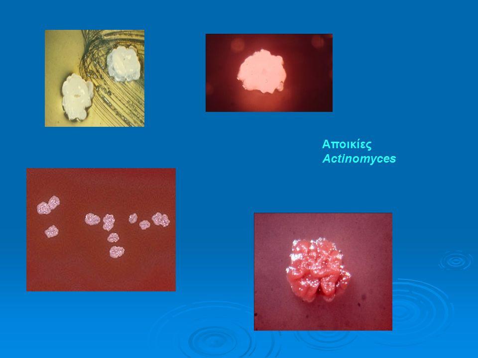 Αποικίες Actinomyces