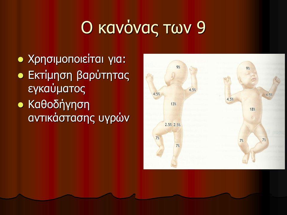 Ο κανόνας των 9 Χρησιμοποιείται για: Χρησιμοποιείται για: Εκτίμηση βαρύτητας εγκαύματος Εκτίμηση βαρύτητας εγκαύματος Καθοδήγηση αντικάστασης υγρών Καθοδήγηση αντικάστασης υγρών