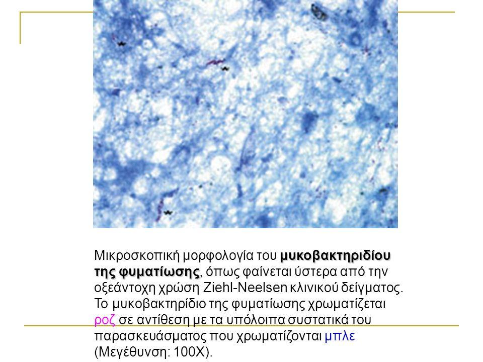 μυκοβακτηριδίου της φυματίωσης Μικροσκοπική μορφολογία του μυκοβακτηριδίου της φυματίωσης, όπως φαίνεται ύστερα από την οξεάντοχη χρώση Ziehl-Neelsen κλινικού δείγματος.