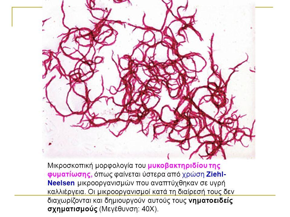 Μικροσκοπική μορφολογία του μυκοβακτηριδίου της φυματίωσης, όπως φαίνεται ύστερα από χρώση Ziehl- Neelsen μικροοργανισμών που αναπτύχθηκαν σε υγρή καλλιέργεια.