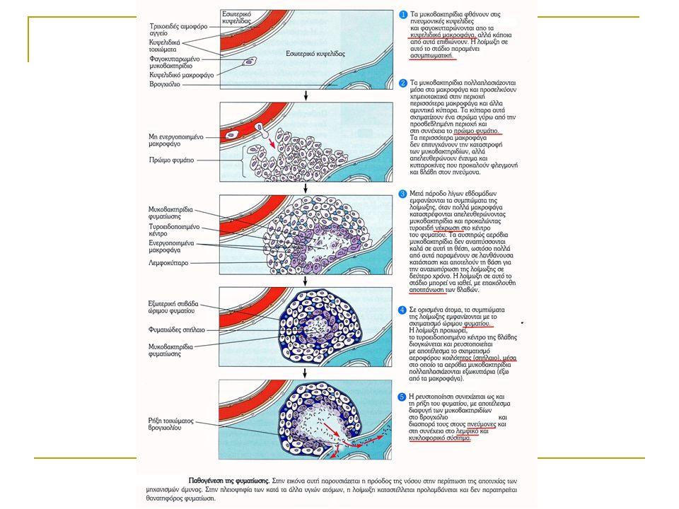 Ιδιαίτερα κλινικά σημεία πνευμονικής φυματίωσης Σημεία πύκνωσης κορυφών Συριγμός επί βρογχοστενώσεως Αμφορική αναπνοή επί μεγάλου σπηλαίου