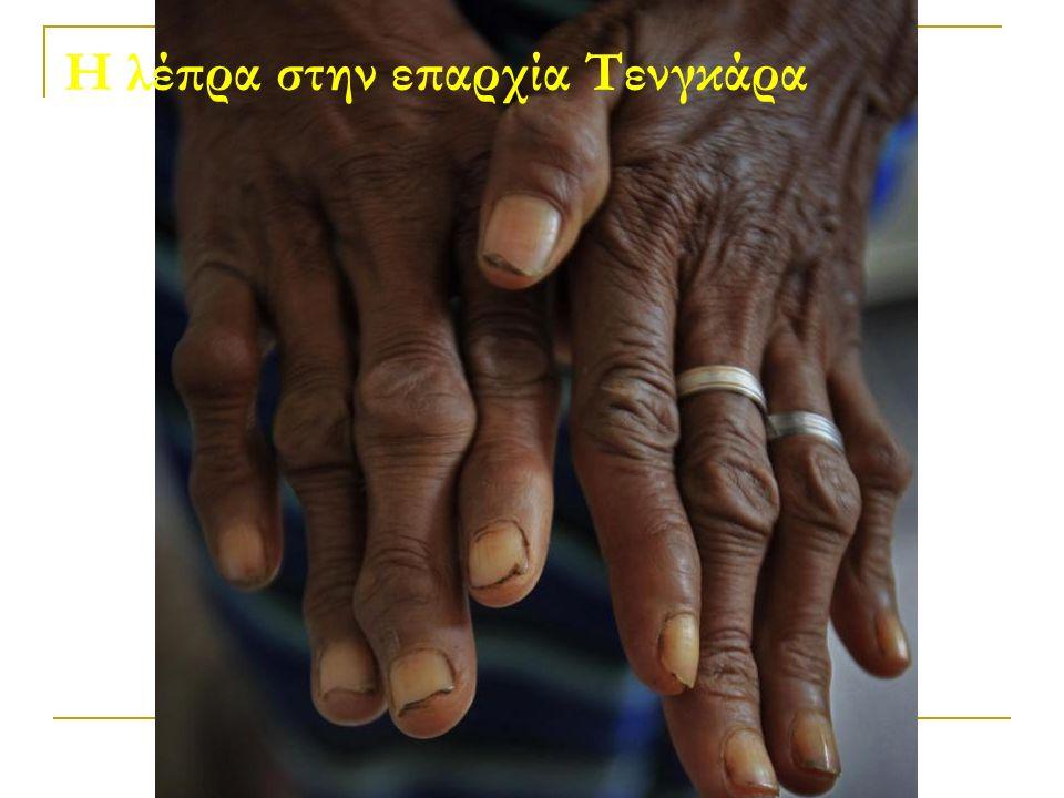 Η λέπρα στην επαρχία Τενγκάρα