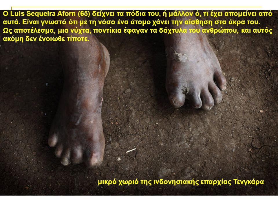 μικρό χωριό της ινδονησιακής επαρχίας Τενγκάρα Ο Luis Sequeira Aforn (65) δείχνει τα πόδια του, ή μάλλον ό, τι έχει απομείνει από αυτά.