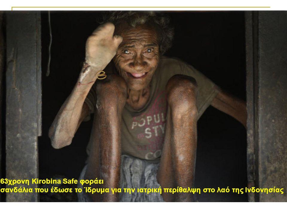 63χρονη Kirobina Safe φοράει σανδάλια που έδωσε το Ίδρυμα για την ιατρική περίθαλψη στο λαό της Ινδονησίας