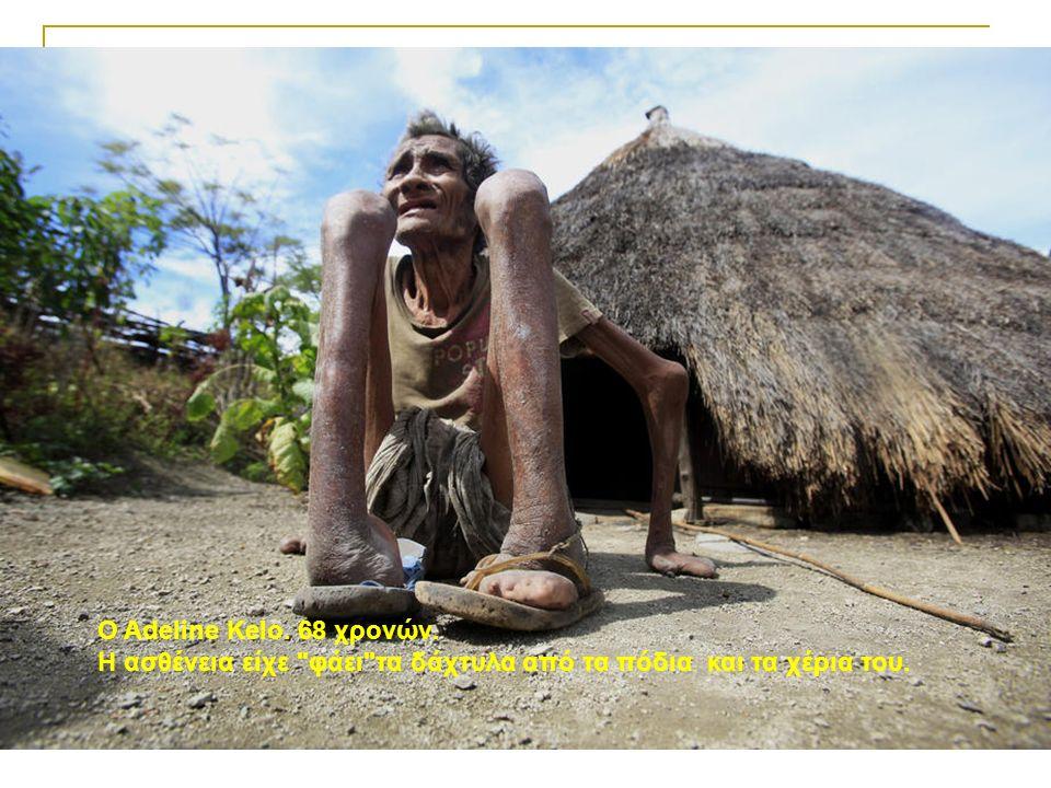 Ο Adeline Kelo. 68 χρονών. Η ασθένεια είχε φάει τα δάχτυλα από τα πόδια και τα χέρια του.