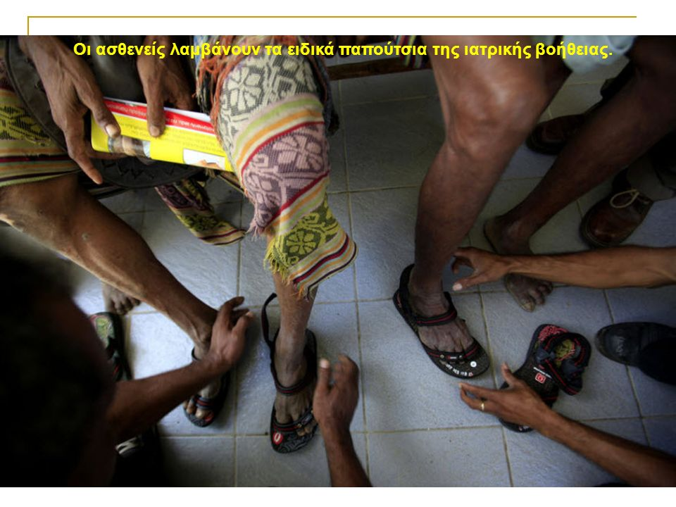 Οι ασθενείς λαμβάνουν τα ειδικά παπούτσια της ιατρικής βοήθειας.