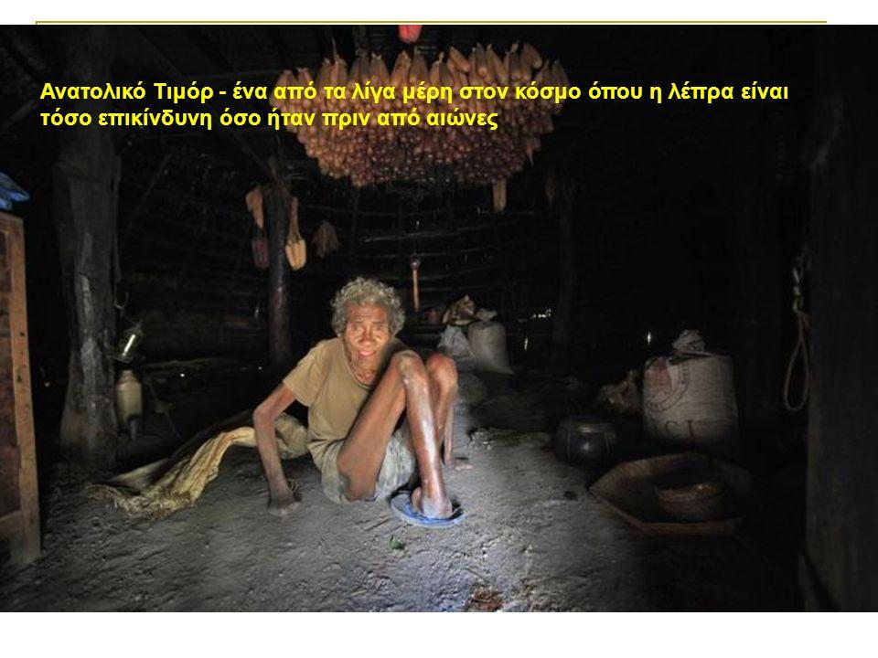 Ανατολικό Τιμόρ - ένα από τα λίγα μέρη στον κόσμο όπου η λέπρα είναι τόσο επικίνδυνη όσο ήταν πριν από αιώνες