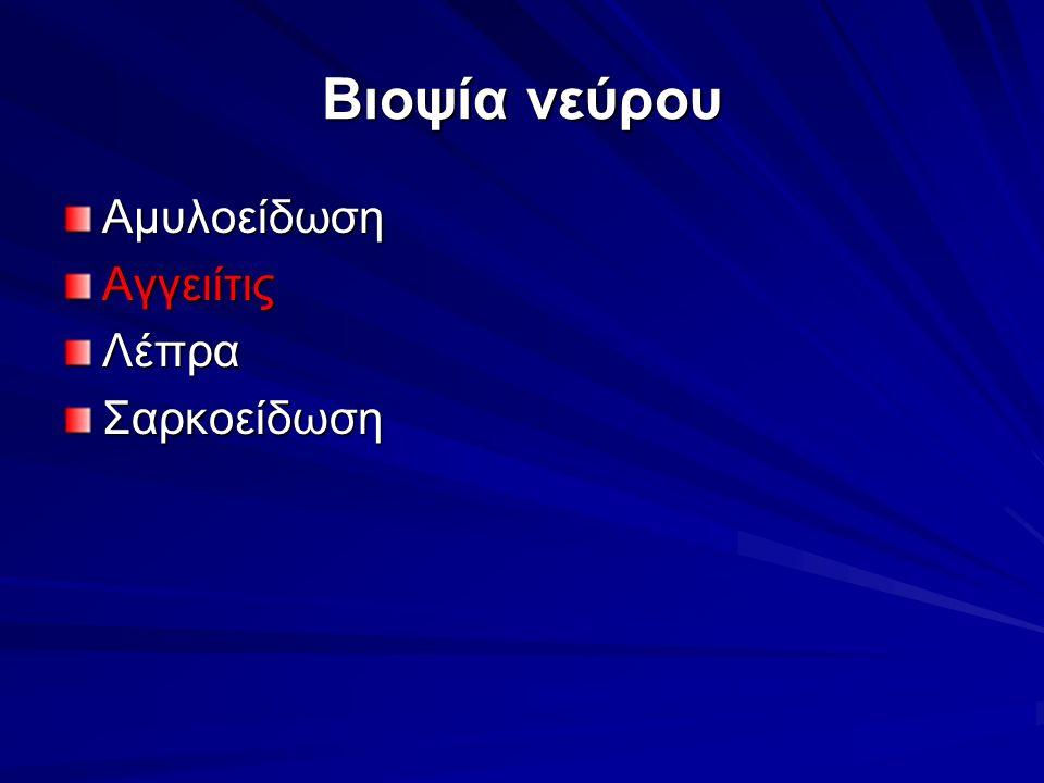 Βιοψία νεύρου ΑμυλοείδωσηΑγγειίτιςΛέπραΣαρκοείδωση