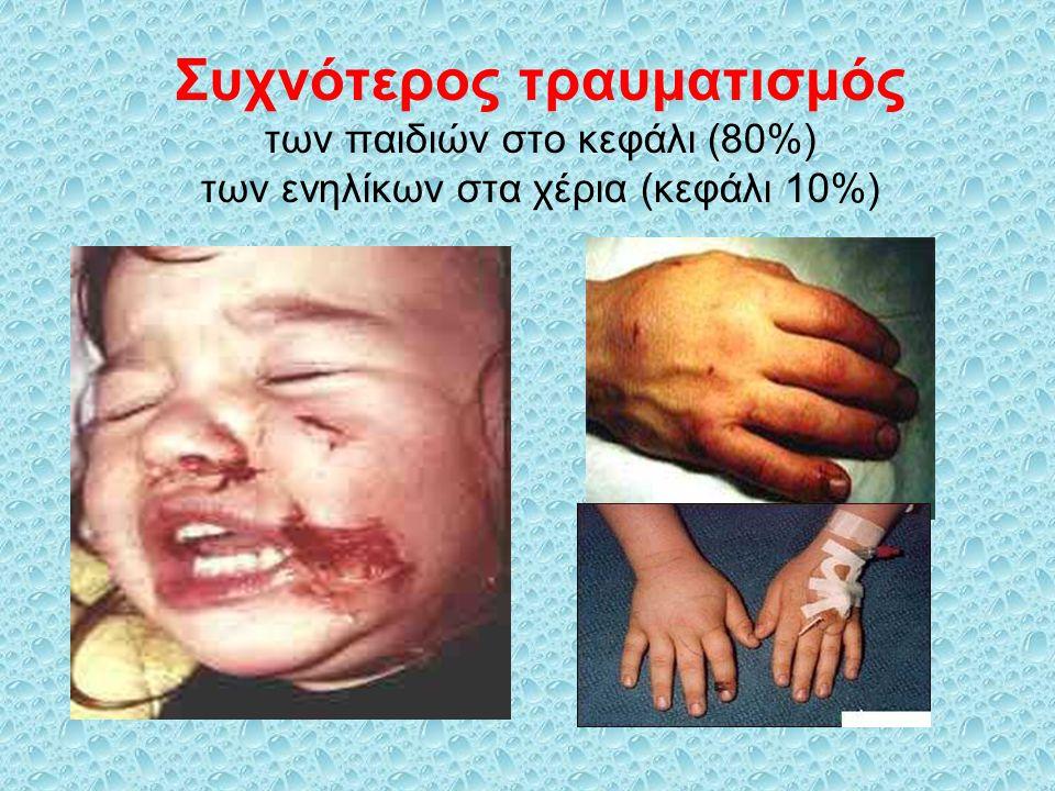 Συχνότερος τραυματισμός των παιδιών στο κεφάλι (80%) των ενηλίκων στα χέρια (κεφάλι 10%)