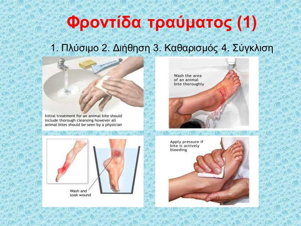 Φροντίδα τραύματος (1) 1. Πλύσιμο 2. Διήθηση 3. Καθαρισμός 4. Σύγκλιση