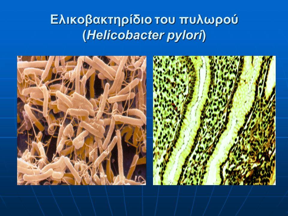 Ελικοβακτηρίδιο του πυλωρού (Helicobacter pylori)