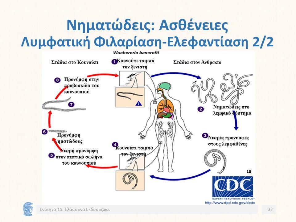 Νηματώδεις: Ασθένειες Λυμφατική Φιλαρίαση-Ελεφαντίαση 2/2 Ενότητα 15. Ελάσσονα Εκδυσόζωα.32 18
