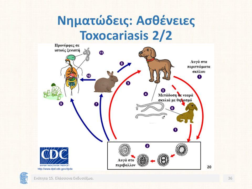 Νηματώδεις: Ασθένειες Toxocariasis 2/2 Ενότητα 15. Ελάσσονα Εκδυσόζωα.36 20