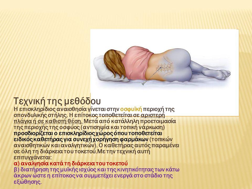 Τεχνική της μεθόδου Η επισκληρίδιος αναισθησία γίνεται στην οσφυϊκή περιοχή της σπονδυλικής στήλης.