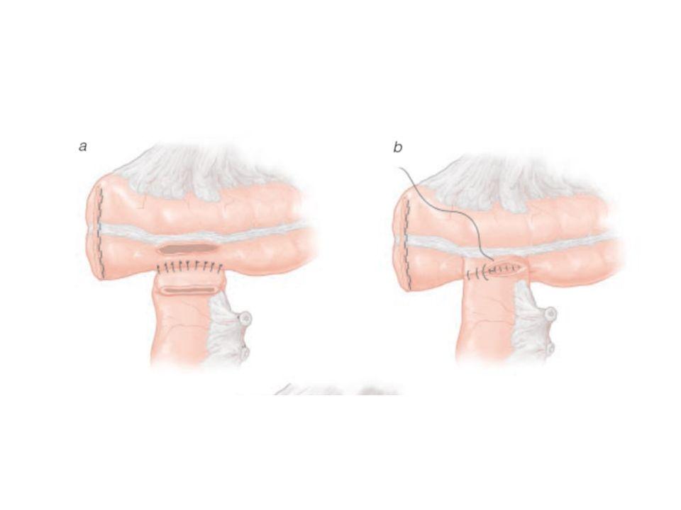 Αναστομώσεις Οισοφάγος – νήστιδα Οισοφάγος - παχύ έντερο Στομάχι λεπτό έντερο Λεπτό έντερο – λεπτό έντερο Λεπτό έντερο – παχύ έντερο Παχύ έντερο – παχύ έντερο Παχύ έντερο – ορθό