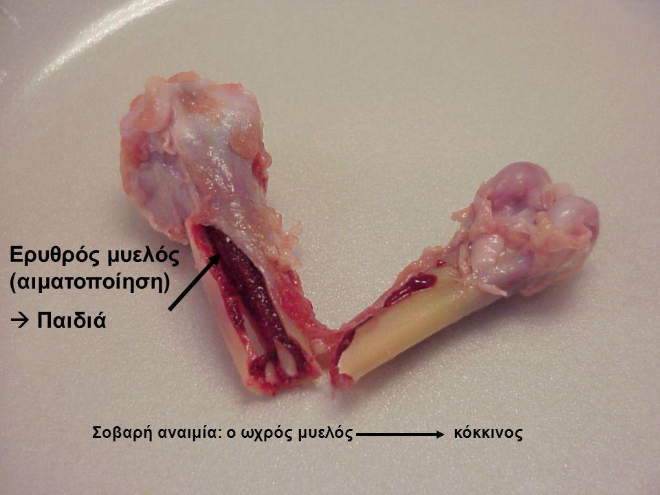 Ερυθρός μυελός (αιματοποίηση)  Παιδιά Σοβαρή αναιμία: ο ωχρός μυελός κόκκινος