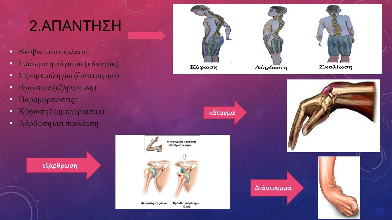 2.ΑΠΑΝΤΗΣΗ Βλάβες του σκελετού: Σπάσιμο ή ράγισμα (κάταγμα) Στραμπούληγμα (διάστρεμμα) Βγάλσιμο (εξάρθρωση) Παραμορφώσεις : Κύφωση (καμπούριασμα) Λόρδ