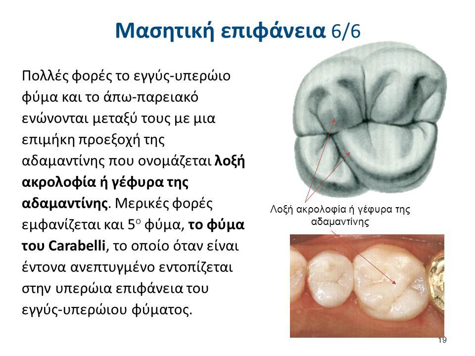 Μασητική επιφάνεια 6/6 Πολλές φορές το εγγύς-υπερώιο φύμα και το άπω-παρειακό ενώνονται μεταξύ τους με μια επιμήκη προεξοχή της αδαμαντίνης που ονομάζεται λοξή ακρολοφία ή γέφυρα της αδαμαντίνης.