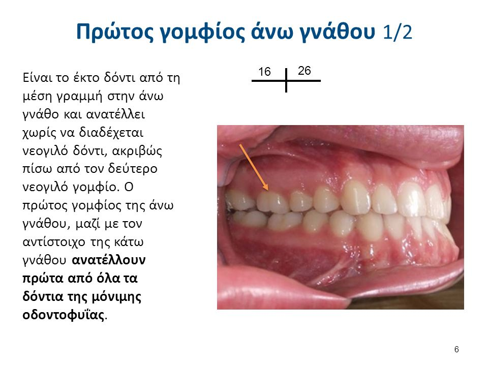 Πρώτος γομφίος άνω γνάθου 1/2 Είναι το έκτο δόντι από τη μέση γραμμή στην άνω γνάθο και ανατέλλει χωρίς να διαδέχεται νεογιλό δόντι, ακριβώς πίσω από τον δεύτερο νεογιλό γομφίο.