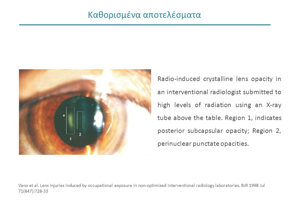 Καθορισμένα αποτελέσματα Radio-induced crystalline lens opacity in an interventional radiologist submitted to high levels of radiation using an X-ray