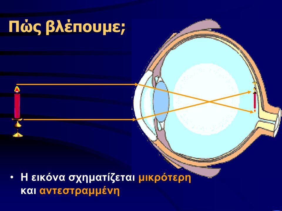 Προβλήματα όρασης  Μυωπία (δεν βλέπουμε καλά μακριά)  Πρεσβυωπία (δεν βλέπουμε καλά κοντά)