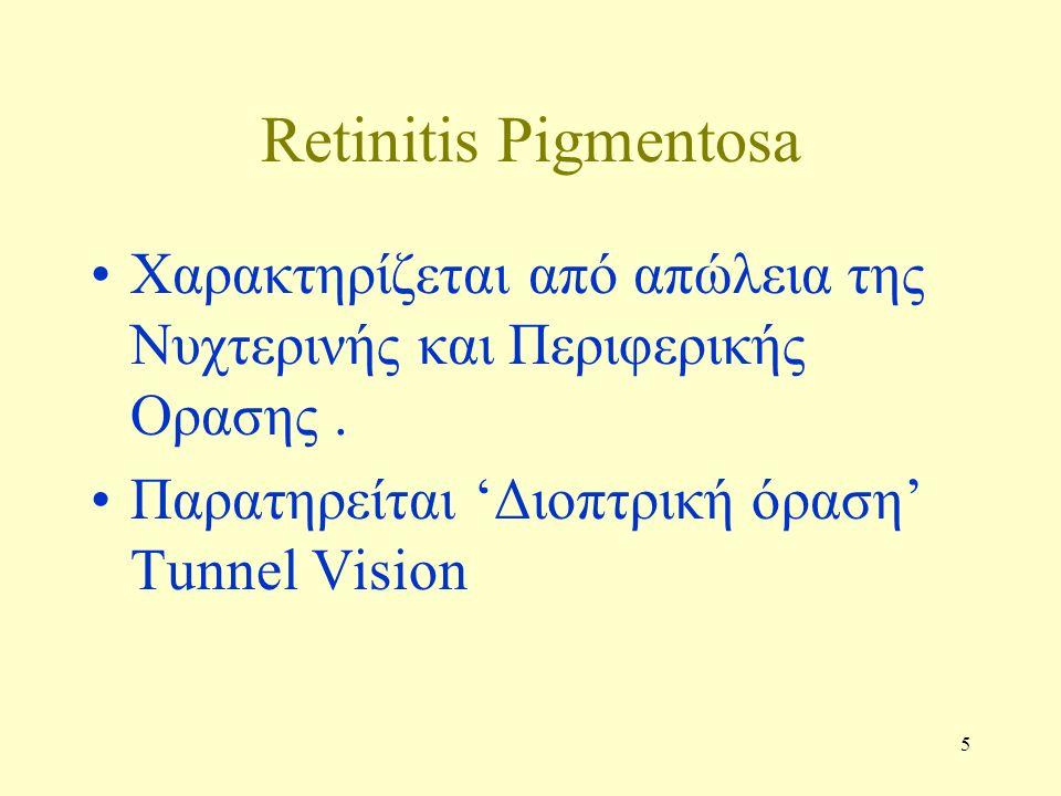 5 Retinitis Pigmentosa Χαρακτηρίζεται από απώλεια της Νυχτερινής και Περιφερικής Ορασης.