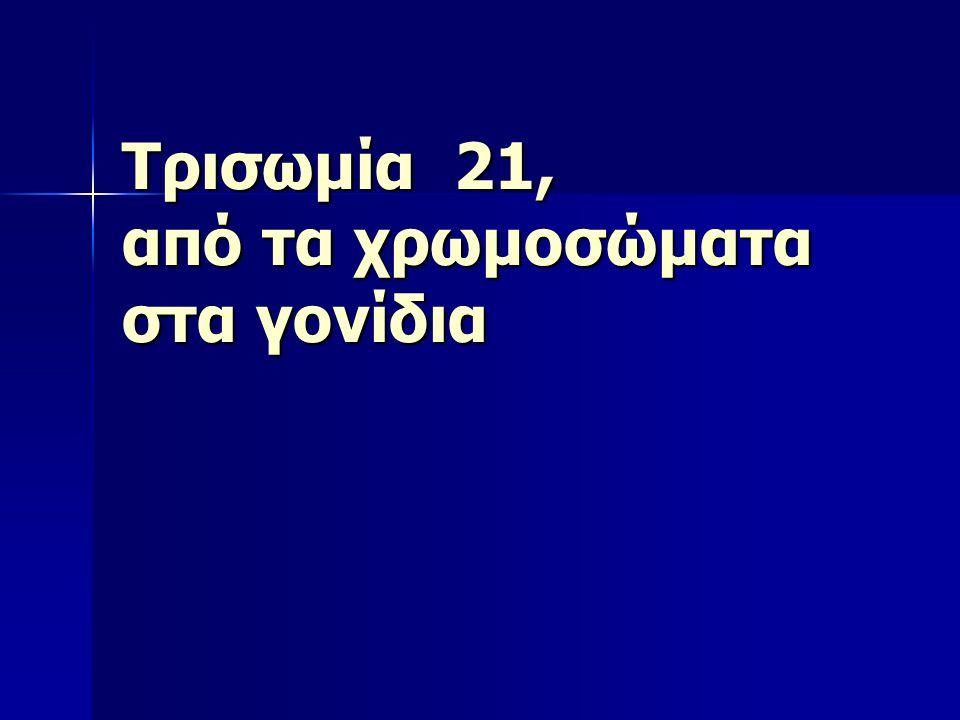 Τρισωμία 21, από τα χρωμοσώματα στα γονίδια