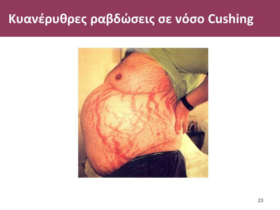 Κυανέρυθρες ραβδώσεις σε νόσο Cushing 23