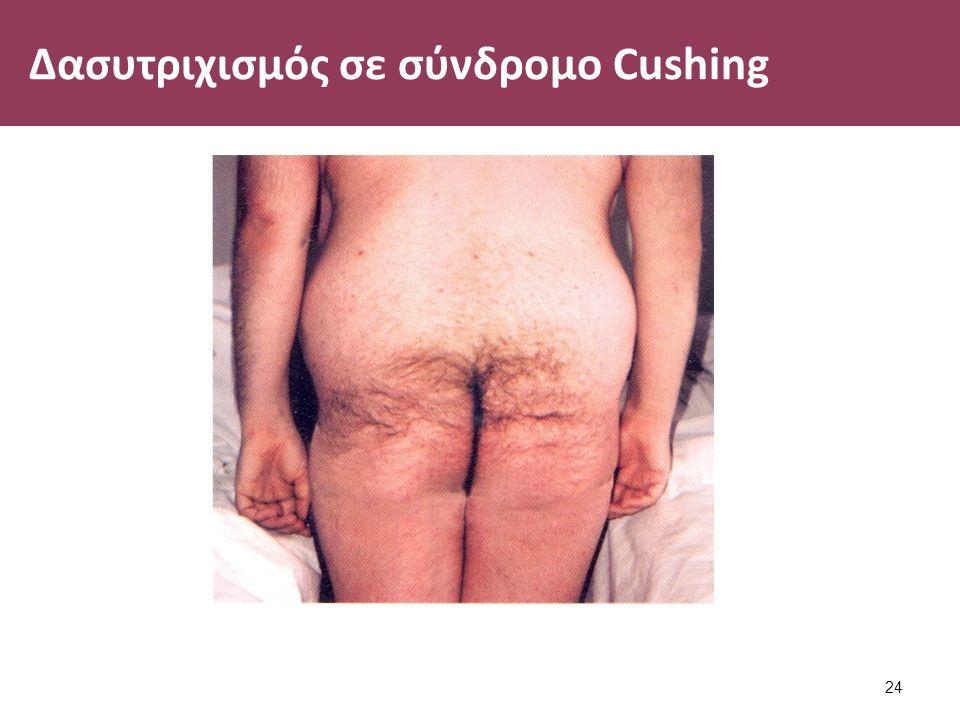 Δασυτριχισμός σε σύνδρομο Cushing 24