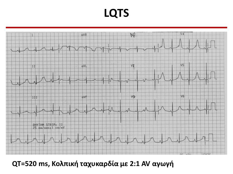 LQTS QT=520 ms, Κολπική ταχυκαρδία με 2:1 AV αγωγή