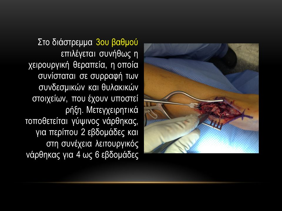 Στο διάστρεμμα 3ου βαθμού επιλέγεται συνήθως η χειρουργική θεραπεία, η οποία συνίσταται σε συρραφή των συνδεσμικών και θυλακικών στοιχείων, που έχουν υποστεί ρήξη.