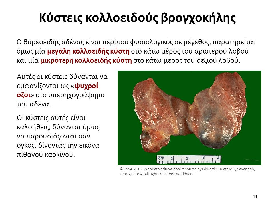 Κύστεις κολλοειδούς βρογχοκήλης Ο θυρεοειδής αδένας είναι περίπου φυσιολογικός σε μέγεθος, παρατηρείται όμως μία μεγάλη κολλοειδής κύστη στο κάτω μέρο