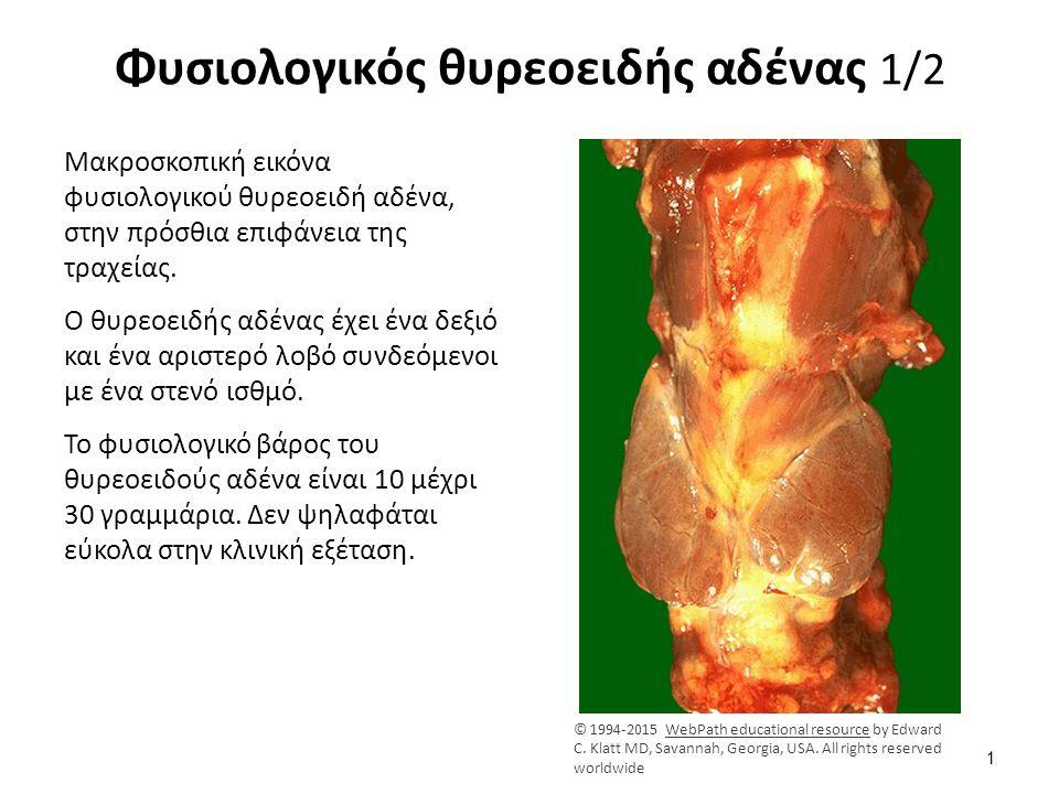 Φυσιολογικός θυρεοειδής αδένας 1/2 Μακροσκοπική εικόνα φυσιολογικού θυρεοειδή αδένα, στην πρόσθια επιφάνεια της τραχείας. Ο θυρεοειδής αδένας έχει ένα