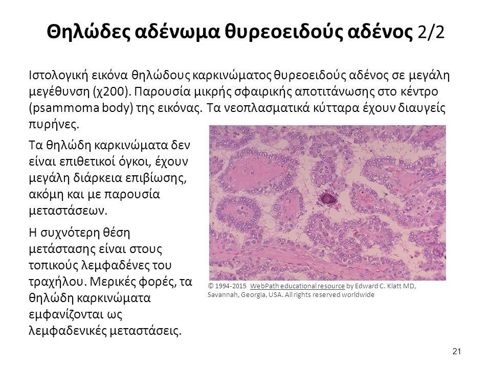 Θηλώδες αδένωμα θυρεοειδούς αδένος 2/2 Ιστολογική εικόνα θηλώδους καρκινώματος θυρεοειδούς αδένος σε μεγάλη μεγέθυνση (χ200). Παρουσία μικρής σφαιρική